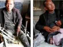 مردی پای خود را با اره قطع کرد+عکس