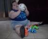 کودکیکه هرماه 3کیلو چاق میشود+عکس