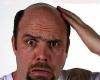 درمان جدیدترین  ریزش مو کشف شد