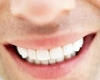 میخواهید دندانتان سفیدتر شود؟