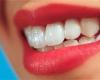 بهترین روش برای سفید کردن دندانها