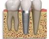 ایمپلنت دندان بایدها و نبایدها